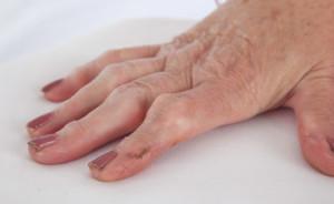 Revmatoid artritt, leddgikt